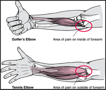 climbers_tennis_golf_elbow